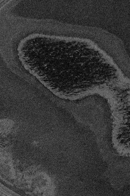 bacteria-4